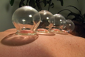 Dr. Fred Ragsdale - Cupping procedure